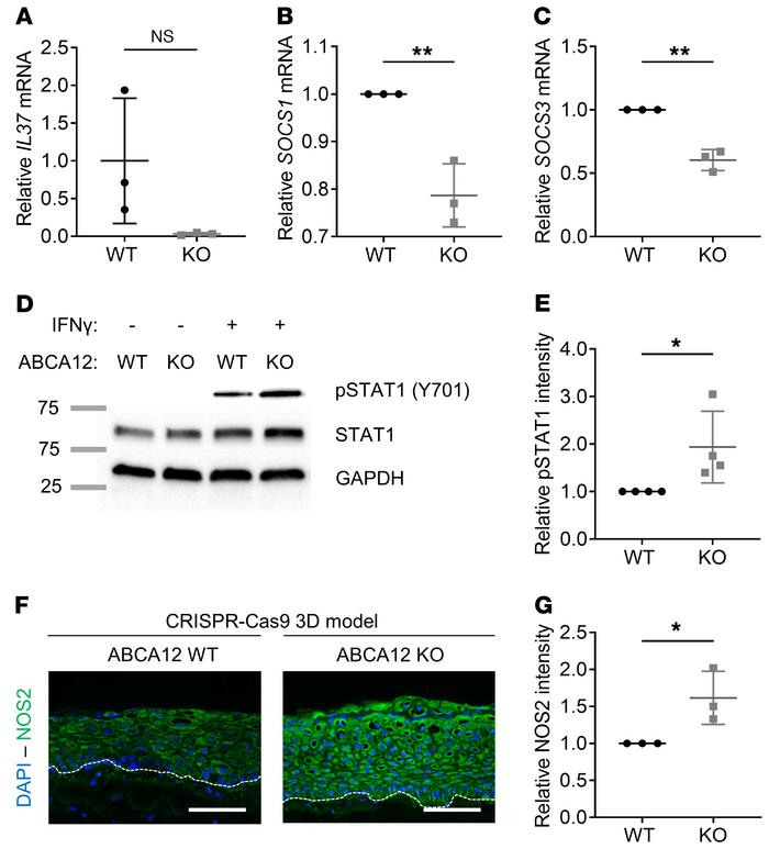 Decrease in antiinflammatory response and activation of NOS2 pathway in ...