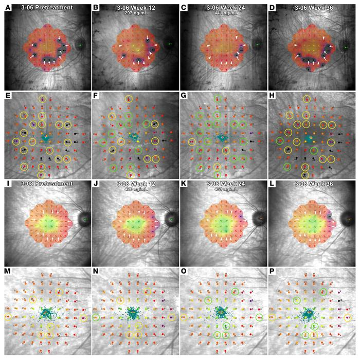 Heatmaps and fundus images from microperimetry testing during treatment ...