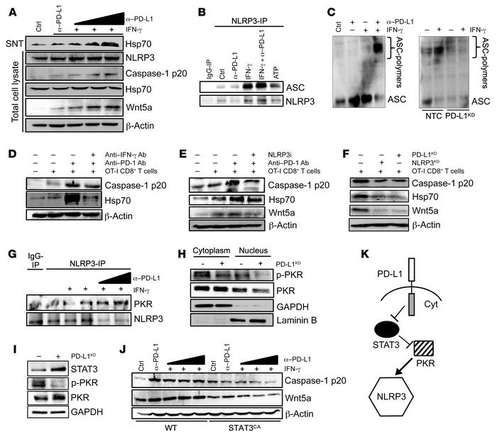 CD8+ T cells trigger a PD-L1/NLRP3 signaling pathway to drive PMN-MDSC r...