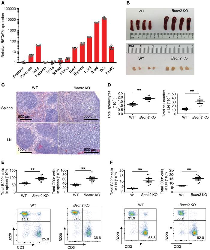 Splenomegaly and lymphadenopathy in Becn2-deficient mice. (A) Real-time ...