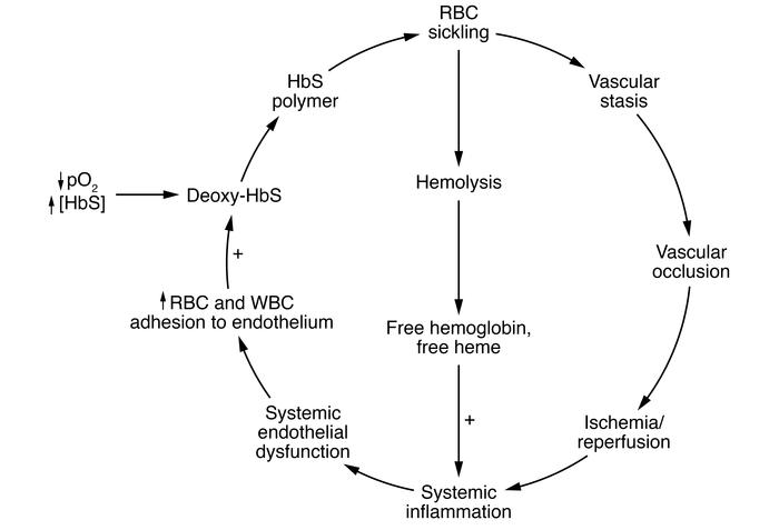 The pathophysiology of sickle cell anemia is cyclic, with a robust infla...