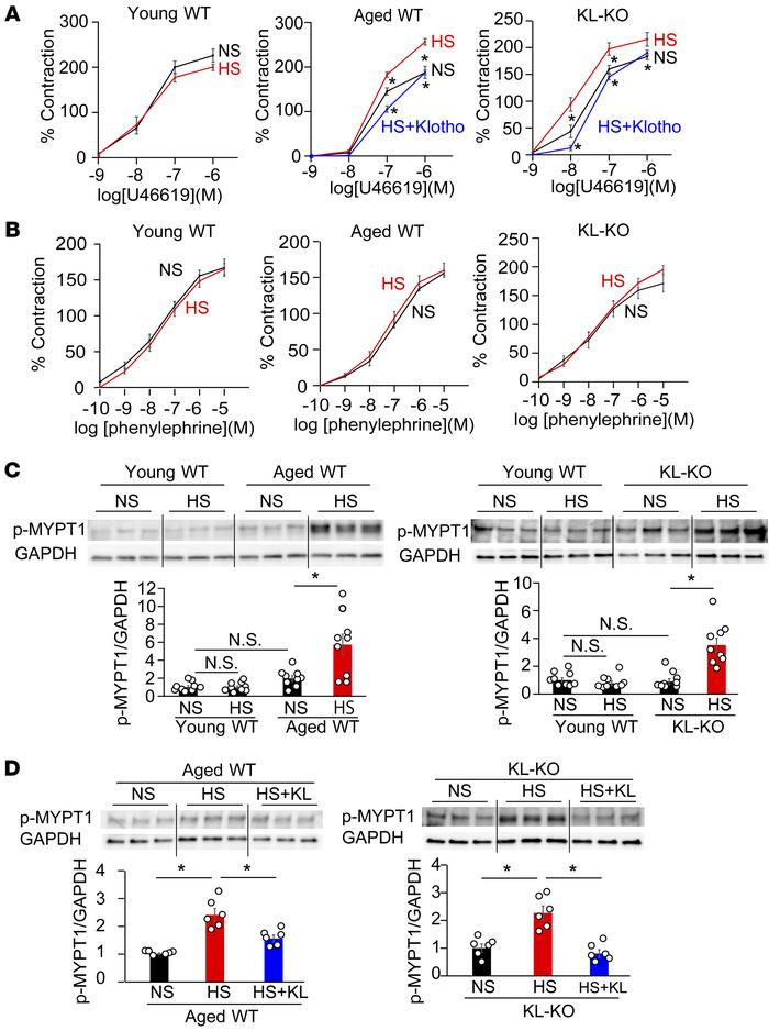 Dietary salt induces vasoconstriction with Rho activation under Klotho d...