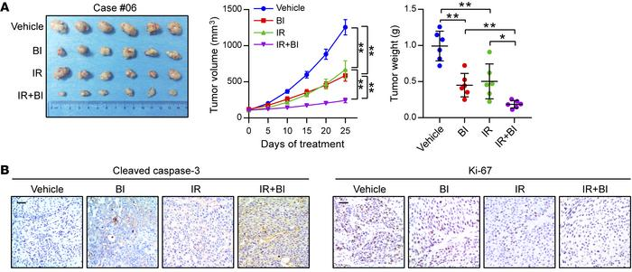 BI-D1870 improves the therapeutic efficacy of radiotherapy in ESCC PDXs....