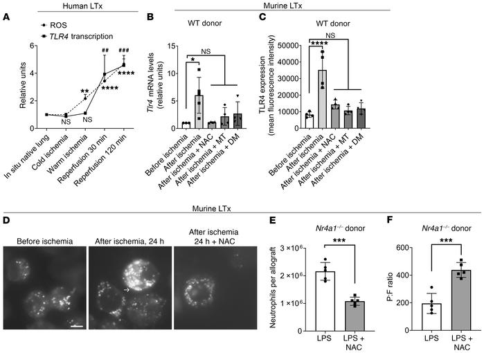 ROS produced during ischemia reperfusion are responsible for TLR4 upregu...