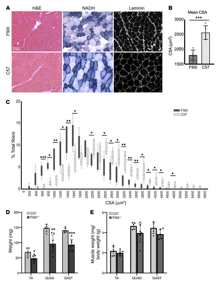 DNAJB6-F90I–knockin mice develop myopathy. (A) Histochemical analysis wi...