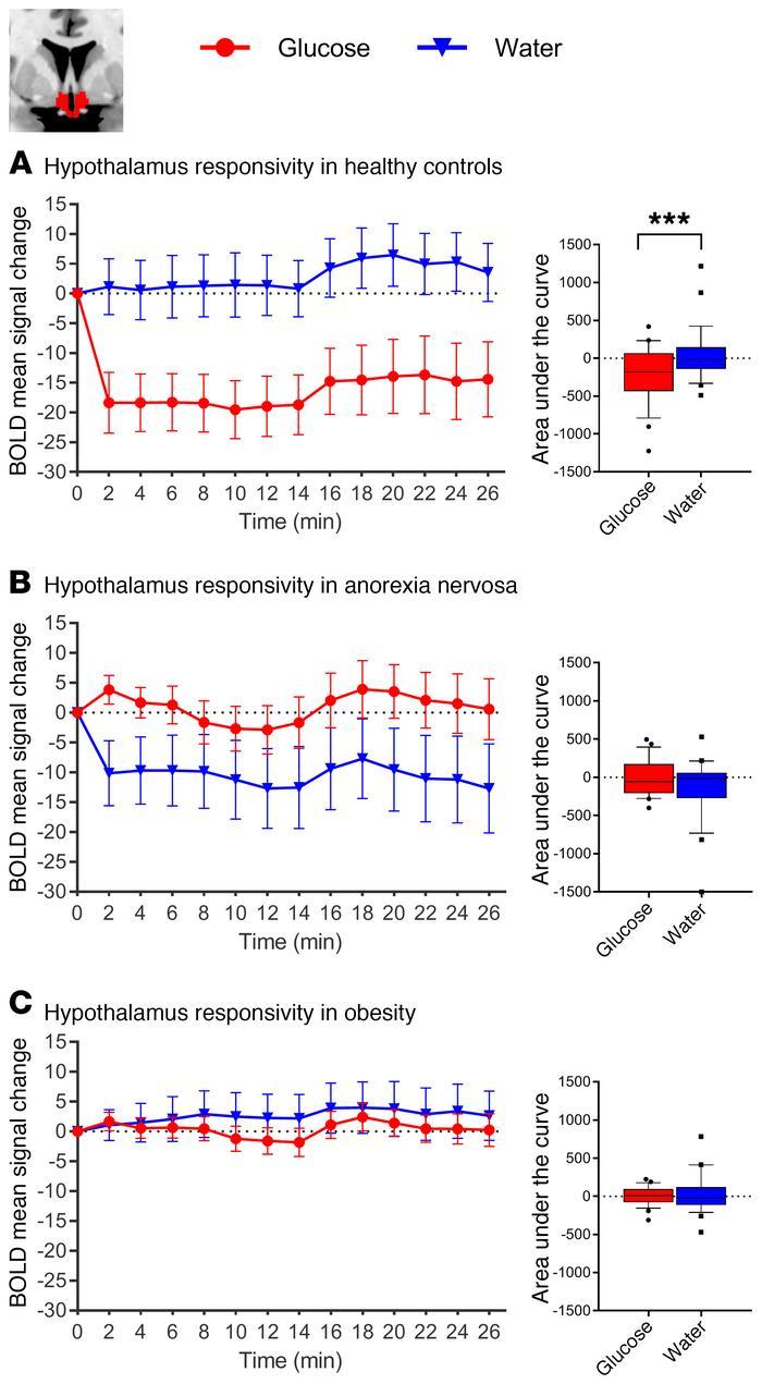 Changes in BOLD signal over time in response to glucose and water infusi...