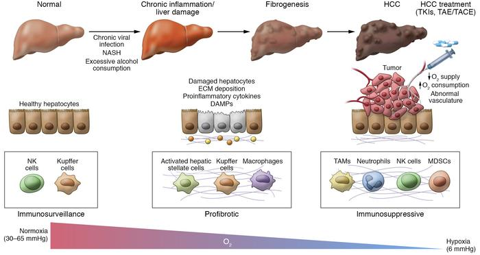 Hypoxia, innate immunity, and the development of HCC. Hepatocarcinogenes...
