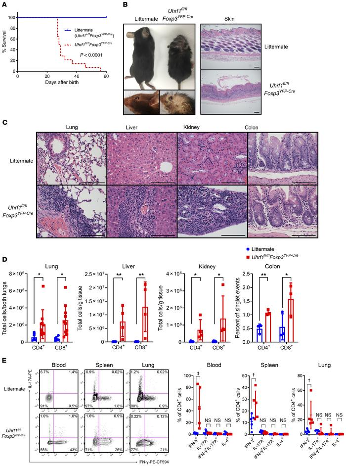 Treg-specific Uhrf1-deficient mice spontaneously develop a fatal inflamm...