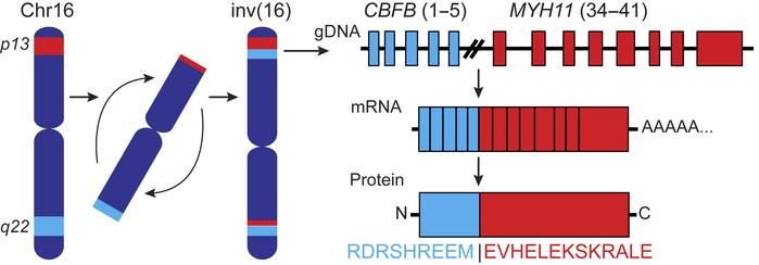 Schematic of the type A CBFB-MYH11 fusion resulting from an inversion in...