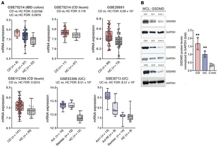 Increased expression of GSDMD in biopsies and isolated IECs from gut muc...