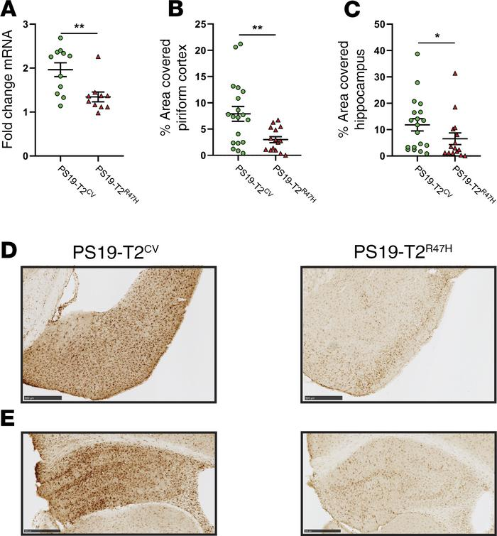 R47H variant of TREM2 decreases microgliosis in 9-month-old PS19 mice. (...