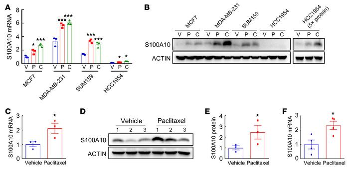 Chemotherapy induces S100A10 expression in vitro and in vivo. (A and B) ...