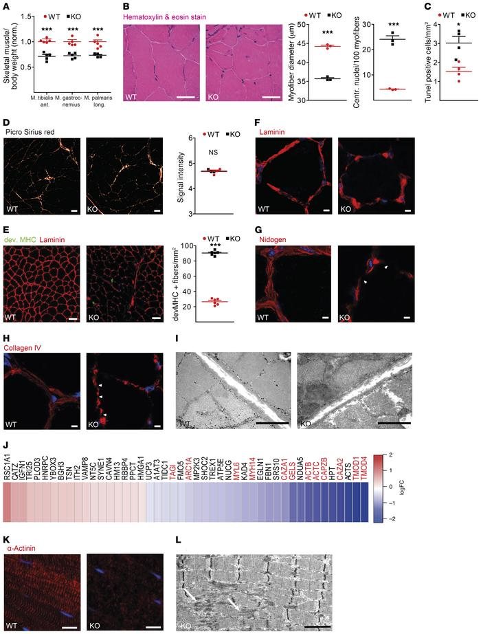 Gmppa-KO mice develop an age-dependent myopathy. (A) Reduced muscle mas...