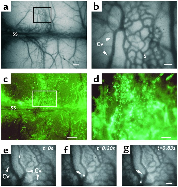 Intravital microscopy of the parietal BM in NOD/SCID mice. (a) Low-power...