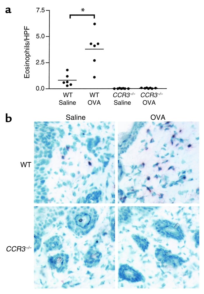Eosinophils are virtually absent in OVA-sensitized skin sites of CCR3–/–...