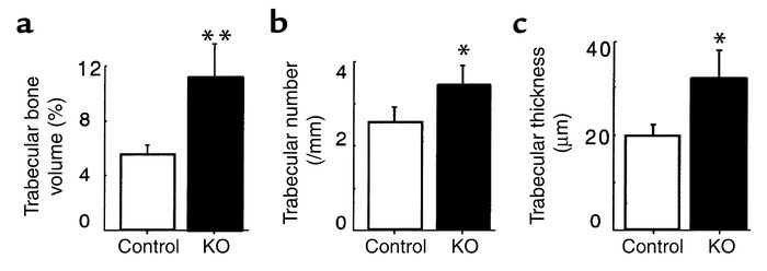 Effect of adult induced hypothalamus-specific Y2 receptor deletion on tr...