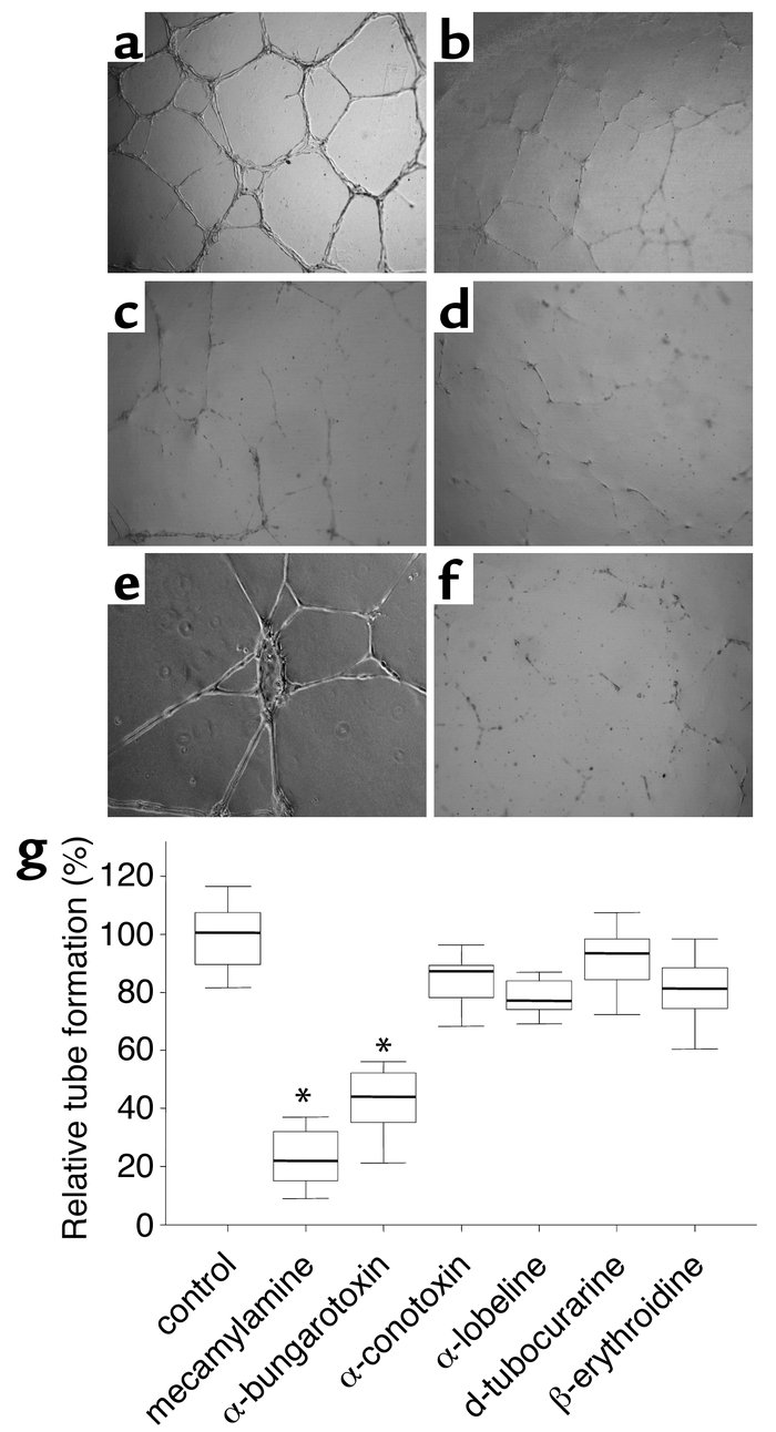 Effect of nAChR inhibition on angiogenesis in vitro. (a) Seeding of ECs ...