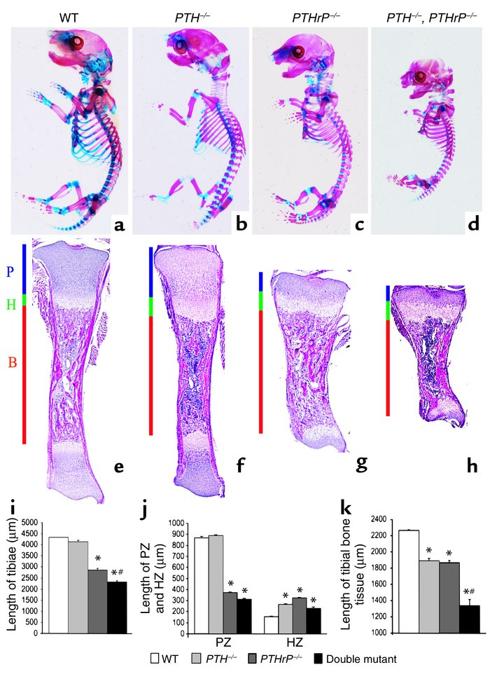 Jci Parathyroid Hormone Is Essential For Normal Fetal Bone Formation