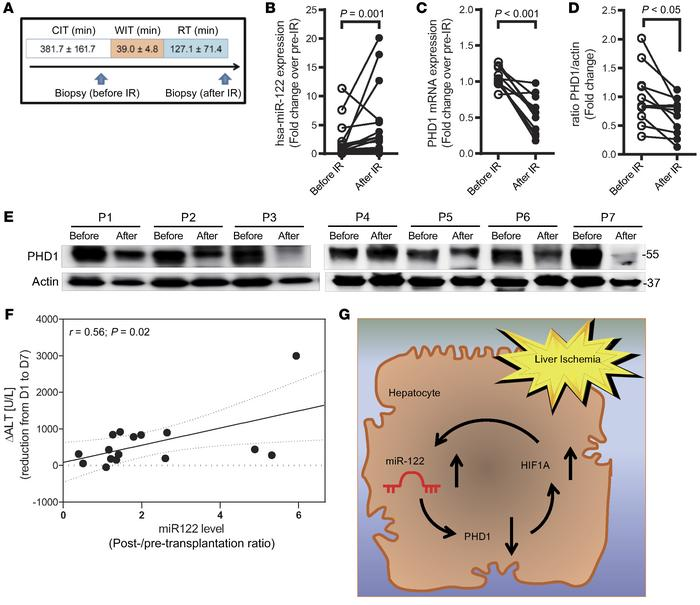 MiR122 expression is increased in human hepatic IR injury. (A) Two subse...
