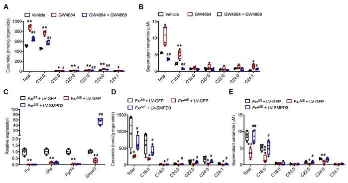 Ceramide level alterations are reversed by forced expression of SMPD3. (...