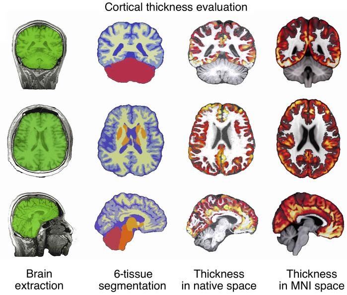 Workflow of ANTs cortical thickness estimation. ANTs cortical thickness ...