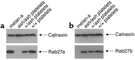 Expression of Rab27a and Rab27b in melanocytes and platelets. Platelets ...