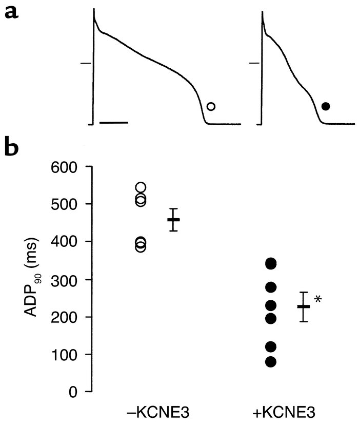 Effects of KCNE3 on APD; ex vivo transduction of rabbit ventricular myoc...