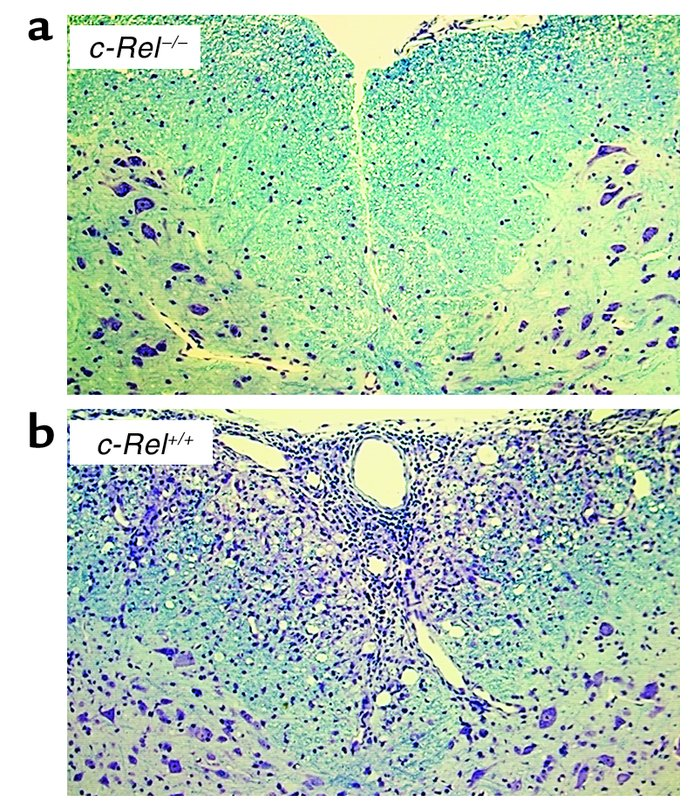 Histological profiles of spinal cords. Mice were treated as described in...