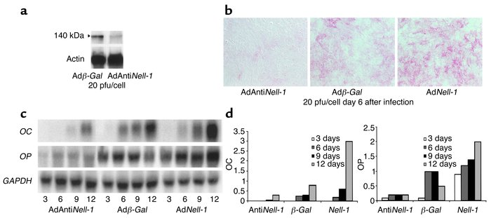 Effect of Nell-1 downregulation on alkaline phosphatase expression and b...