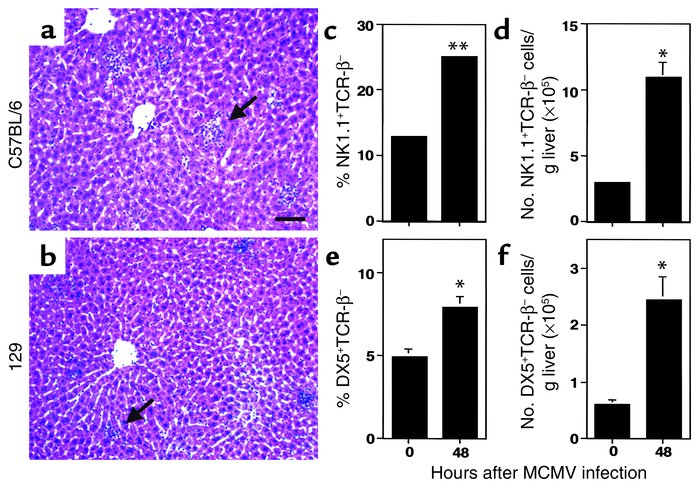 NK cell accumulation in MCMV-infected C57BL/6 and 129 livers. Livers wer...