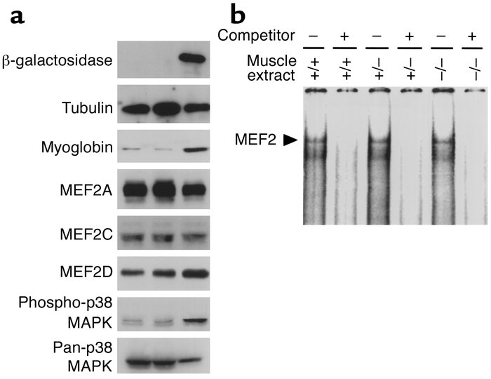 Immunoblots and assays for DNA-binding of MEF2 using WV muscle extracts ...