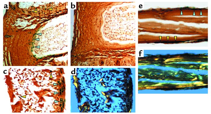 Noggin expression assessed by β-gal staining in adult bone tissues. Spin...