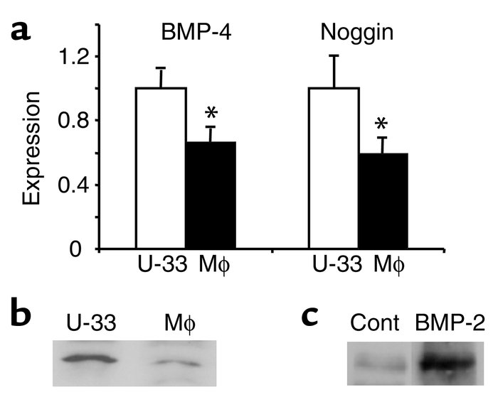 Noggin expression in bone marrow–derived macrophages. Bone marrow–derive...
