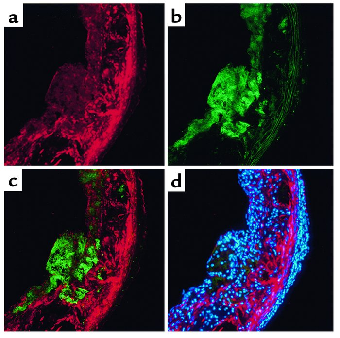 Immunolocalization of FK in atherosclerotic lesions. Mice lacking apoE (...