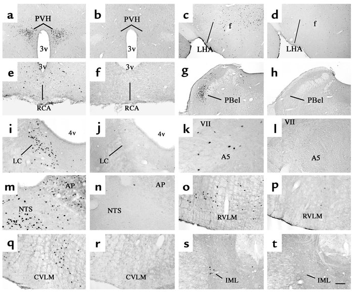Distribution of i.v. EXN-4–induced Fos-IR in the brain. A series of phot...