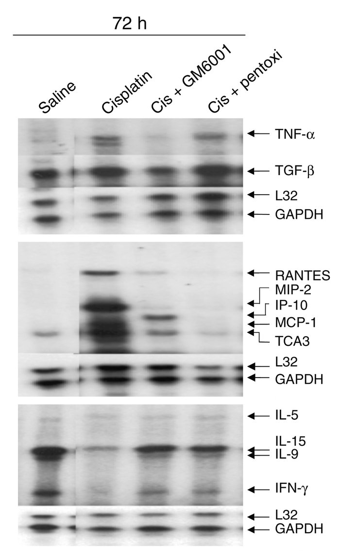 Effect of TNF-α inhibitors on renal cytokine expression. Mice were injec...