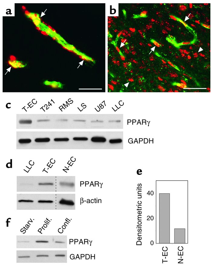 PPARγ is expressed in endothelium of normal and neoplastic tissues. (a) ...