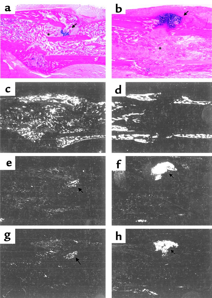 Characterization of defective fracture healing in COX-2–/– mice by in si...