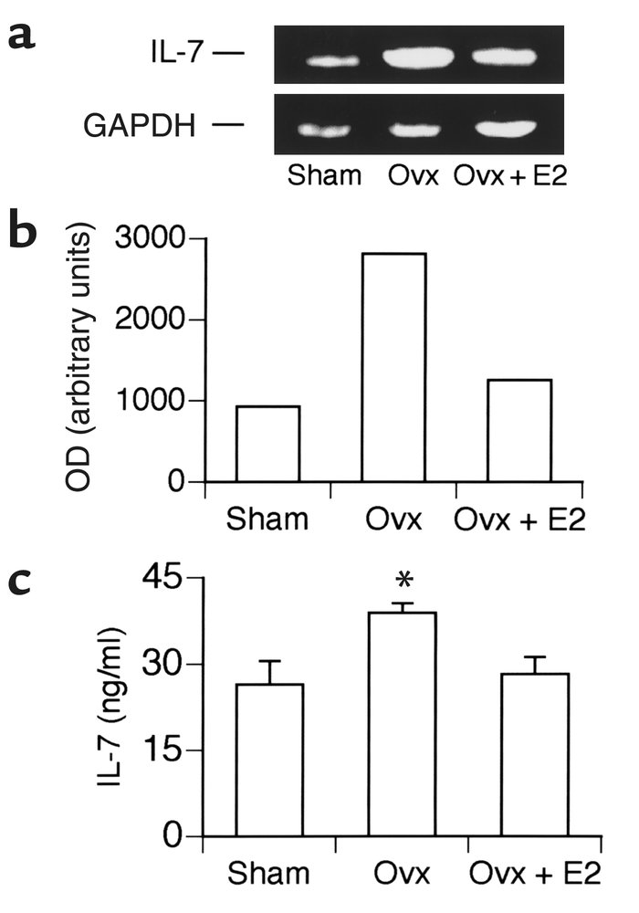E2 deficiency upregulates IL-7 mRNA and protein concentrations in murine...