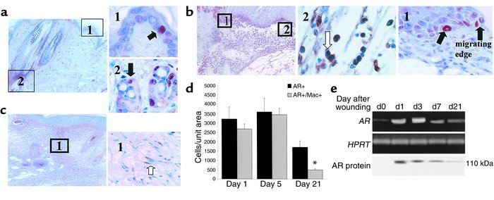 AR localizes to keratinocytes, inflammatory cells, and fibroblasts durin...