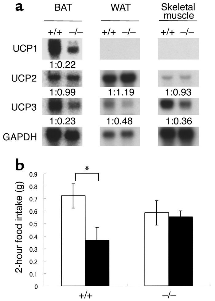Metabolic marker changes and thioperamide activity. (a) Expression of UC...