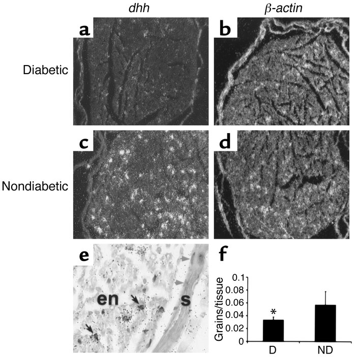 Reduced dhh mRNA in sciatic nerves of diabetic rats as shown by radioact...