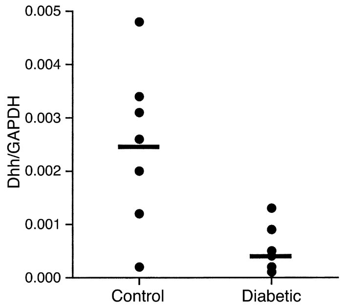 Reduced dhh mRNA levels in sciatic nerves of diabetic rats as shown by q...