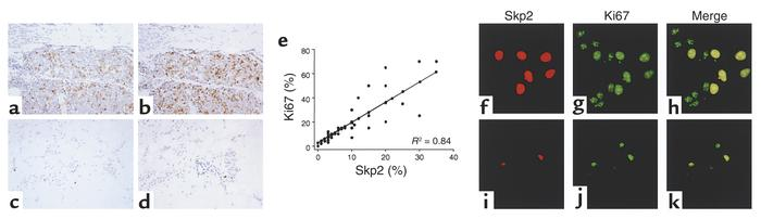 Correlation between Skp2 and proliferative index in sample set B. (a–d) ...