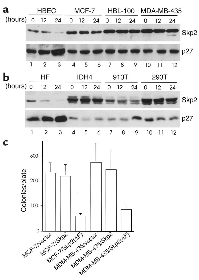 Expression of Skp2 is required for anchorage independence in breast epit...