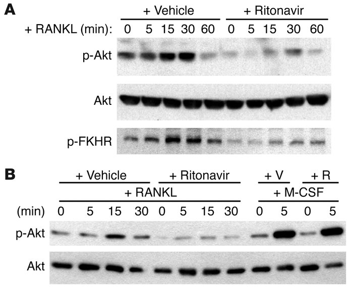 Ritonavir inhibits RANKL-induced Akt activation. (A) RAW 264.7 cells pre...