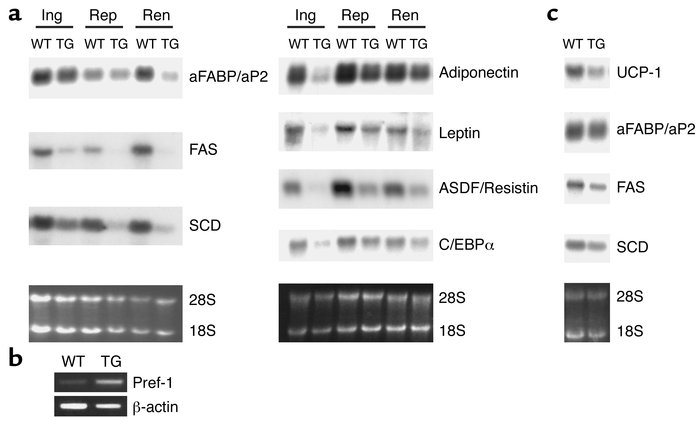 Gene expression in adipose tissue from aP2-Pref-1/hFc transgenic mice. (...