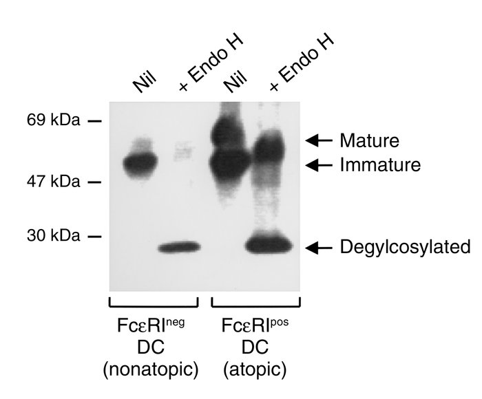 Immature FcεRIα is found both in FcεRIpos from atopics and FcεRIneg DCs ...