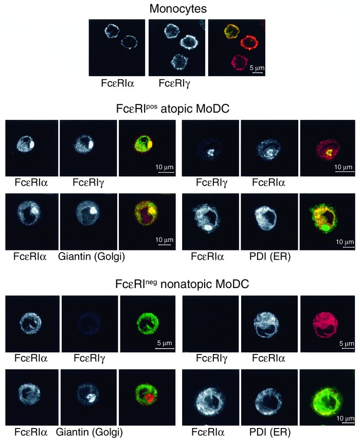 Monocytes, FcεRIpos, and FcεRIneg DCs show a different localization of F...