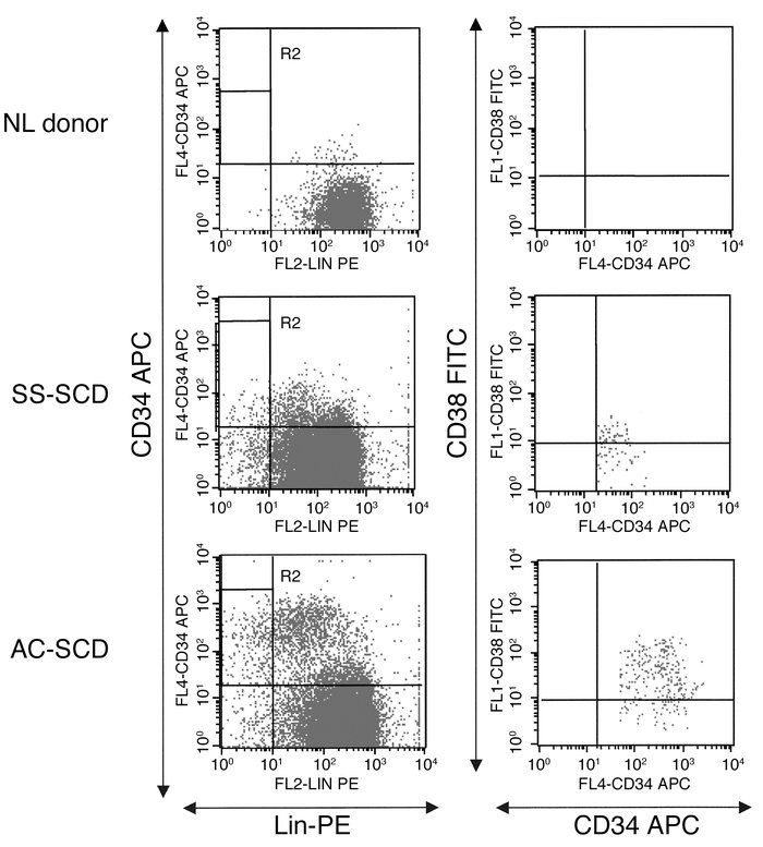 FACS analysis for CD34+CD38–Lin– cells in PB of NL donors and SS-SCD and...